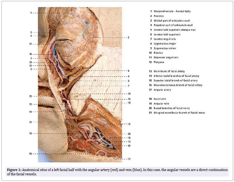 Tracing The Blood Flow Direction Of The Angular Artery And Vein By