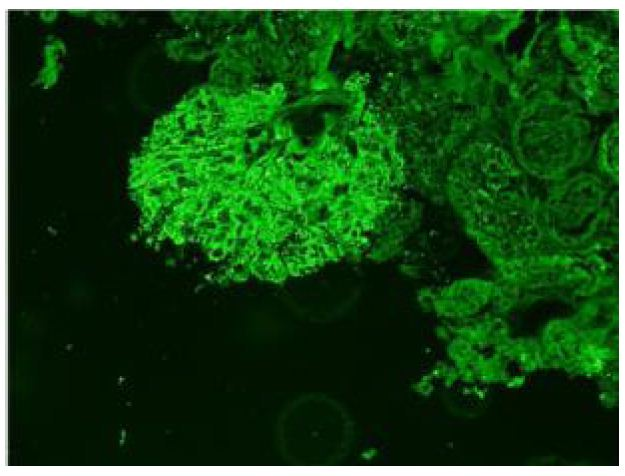 Case Follow-Up: Development of Primary Membranous