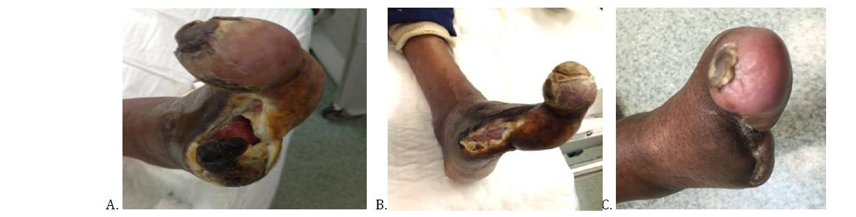 Successful Healing of Diabetic Foot Ulcers and Various Etiology