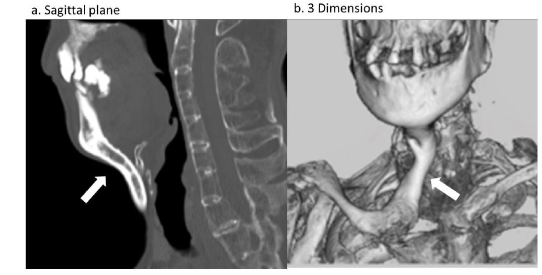 Dysphagia in Two Cases of Fibrodysplasia Ossificans Progressiva