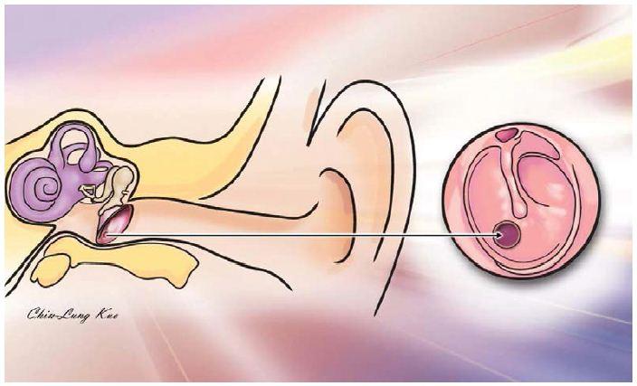 transtympanic steroids meniere's